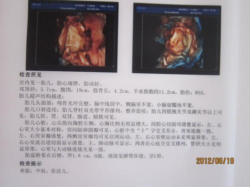 6月19日宝宝24周四维彩超图片
