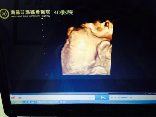 宝宝五个半月四维彩超图片 大家帮忙猜猜男女图片