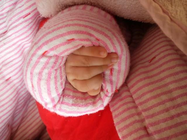 ,今天发现宝宝指甲根部发紫