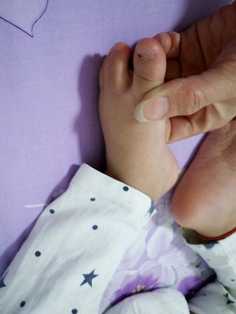 紧急求助 我家宝宝的大脚趾甲扁平,指甲前端有些往上翘,