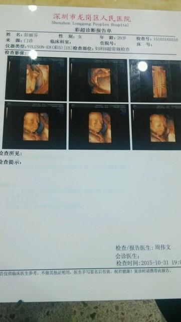 四维彩超图片