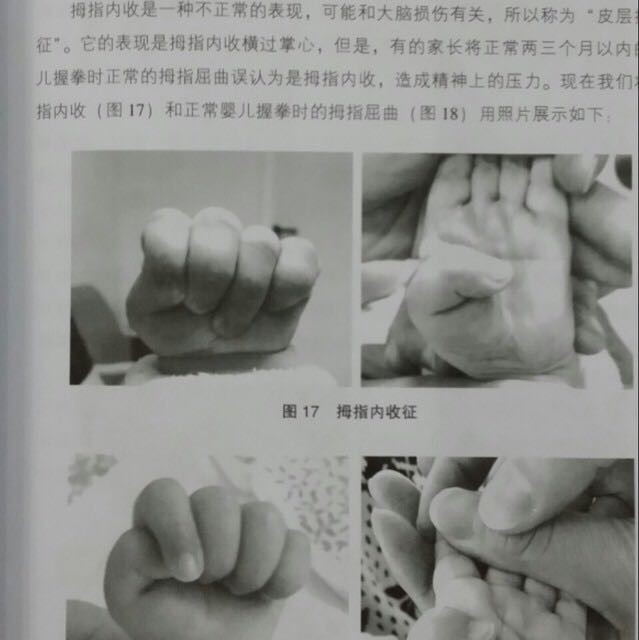 宝宝拇指内扣