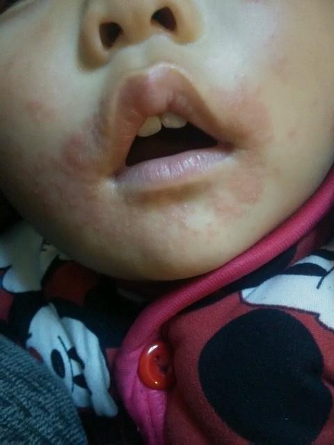 一岁宝宝脸部过敏怎么办